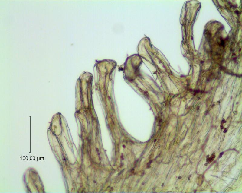 Cuscuta incurvata; infrastaminal scale detail (fimbriae with laticifers)