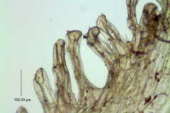 Cuscuta incurvata; infrastaminal scale detail (fimbriae with laticifers)