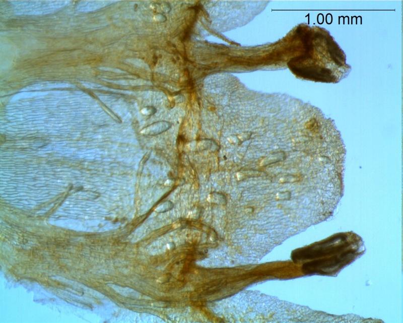 Cuscuta gronovii var. gronovii - infrastaminal scales