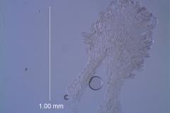 Cuscuta epithymum var. (subsp) epithymum: infrastaminal scale detail