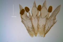 Cuscuta leptantha, corolla, dissected