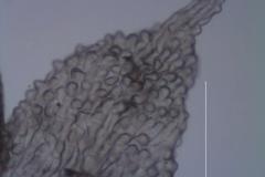 Cuscuta desmouliniana; corolla lobe