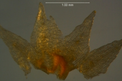 Cuscuta liliputana, dissected calyx