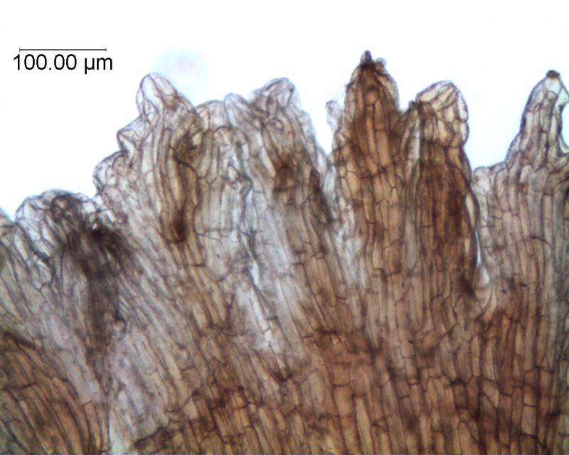 Cuscuta carnosa, infrastaminal scales detail
