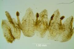 Cuscuta azteca, corolla dissected