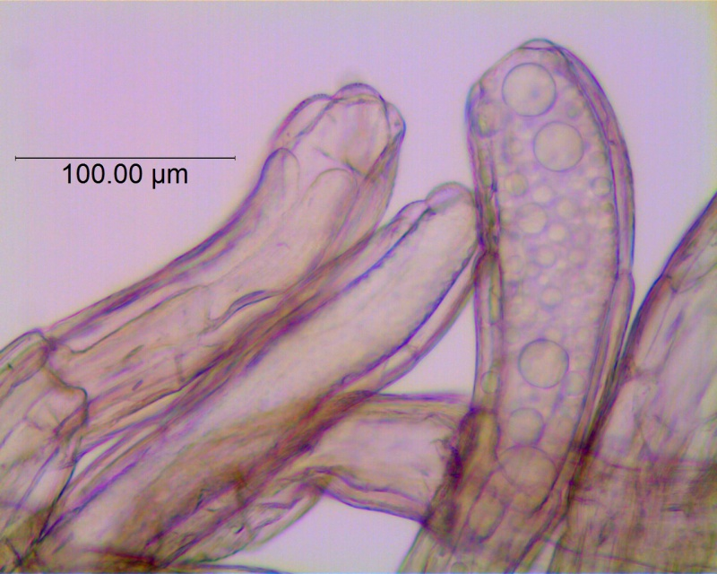 Cuscuta campestris, scale fimbriae with laticifers (taken by Kristy Dockstader)