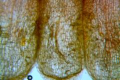 Cuscuta rubella, corolla and scales