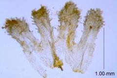 Cuscuta xanthochortos var. lanceolata, scales