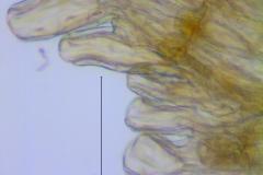 Cuscuta xanthochortos var. lanceolata, scale fimbriae