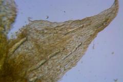 Cuscuta pacifica var. papillata; dissected calyx: corolla lobe detail